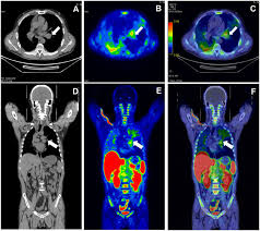 development and evaluation of 18 f irs for molecular imaging