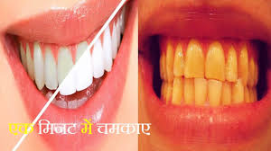 hindi teeth whitening at home in 1 minutes how to whiten your
