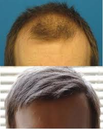prescreened hair transplant physicians presenting the newest hair transplant patients of the month