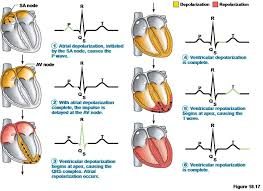 best 25 qrs complex ideas on pinterest cardiac nursing cardiac