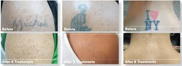 advances in laser tattoo removal can give your skin a fresh start