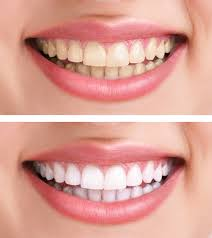 teeth whitening treatment in glasgow scotland by the peppermint