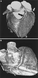 noninvasive coronary angiography by retrospectively ecg gated