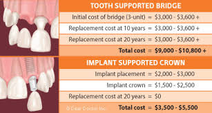 Bridge Dental Cost Estimate by Comparing The Cost Of Implants To Fixed Bridgework