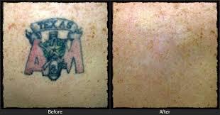 plus de 25 idées magnifiques dans la catégorie tattoo removal