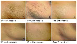 best pubic hair styles quick comfortable laser hair removal with great results and no