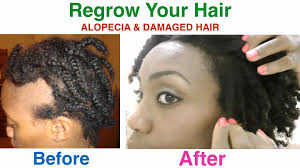 hairr styles for woman with alopica how to regrow your hair alopecia damaged hair youtube