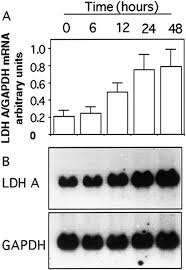 interleukin 1α stimulates lactate dehydrogenase a expression and