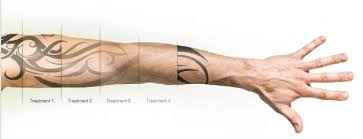 laser tattoo removal procedure arion skin laser