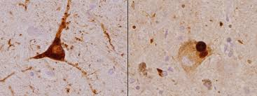 evidence of alzheimer u0027s in patients with lewy body disease tracks