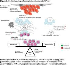 complications and management of coagulation disorders in leukemia