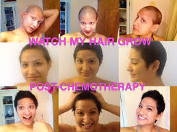 hairstyle for when hair grows back after chemo nalie agustin s hairgrowth post chemotherapy young women with