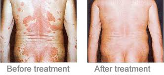 psoriasis and ultraviolet light uvb ls psoriasis and vitiligo ls have never been so efficient