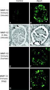 role for macrophage metalloelastase in glomerular basement