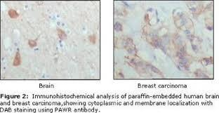 par4 research products novus biologicals