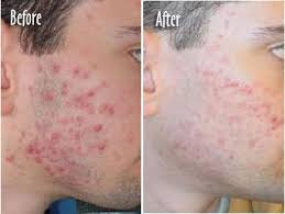 blue light for acne side effects blue light acne treatment before and after
