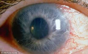What Can Cause Blindness New Glaucoma Op That U0027s Less Scary And So Much Safer Daily Mail