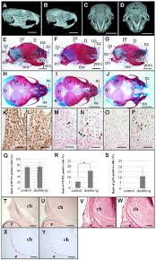 reduced bone morphogenetic protein receptor type 1a signaling in