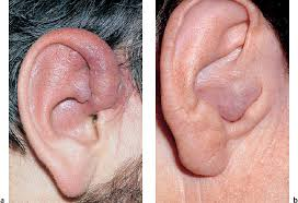 cancer of the ear cartilage tumors and tumor like lesions of the external ear ento key