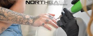 northeast laser tattoo removal home facebook