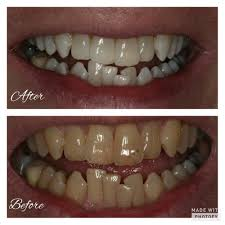 Cost Of Teeth Whitening What Is Teeth Bleaching Or Whitening