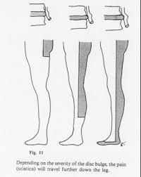 muskelschwäche cox flexion distraction dr med pavlat meier