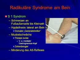 muskelschwäche beine spondylolyse und spondylolisthesis ppt herunterladen