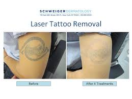 laser tattoo removal nyc tattoo love