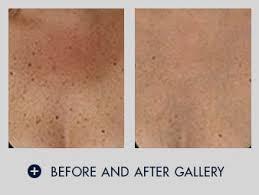 Blu U Before And After Fractional Skin Resurfacing And Skin Tightening Pixel Laser