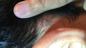 Anatomy Behind The Ear Is It Normal To Have Painful Lump Behind The Ear Dr Sreenivasa