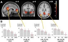 sleep spindles and hippocampal functional connectivity in human
