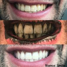 activated charcoal whitening powder bianco smile