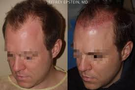hair plugs for men male hair transplants miami fl