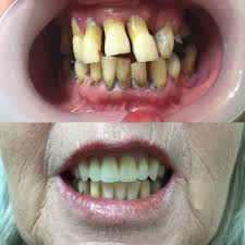 gentle dental home facebook