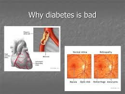 Can Stroke Cause Blindness Diabetes Mellitus Ppt Download