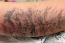 tattoo pimples how to treat and avoid painfulpleasures inc