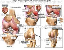 Right Knee Anatomy Right Knee Surgery With Tendon Repair And Grafts Medical