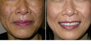 light treatment for skin intense pulsed light treatments are they for you