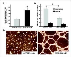 oncogenic transformation of human mammary epithelial cells by