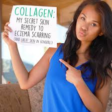 collagen the secret skin remedy for eczema scarring