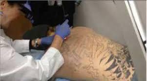 tattoo removal greensboro nc best tattoo 2017