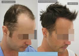 the result of 9 months 3980 grafts fue hair transplant surgery