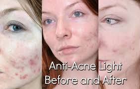 neutrogena light therapy acne spot treatment review bluemd light therapy review trophy skin before after youtube
