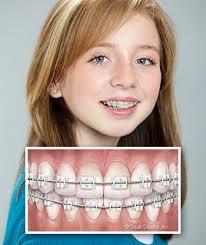 types of braces sugar creek orthodontics p c normal il