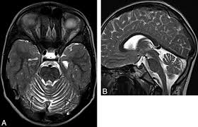 Sagittal Brain Mri Anatomy Inherited Cerebellar Ataxia In Childhood A Pattern Recognition