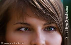 What Causes Eye Blindness Small Eye Syndrome Microphthalmia Causes Symptoms Diagnosis
