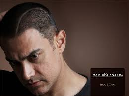 aamir khan hair transplant hair loss forum