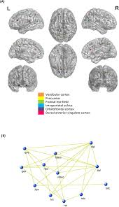 the neural correlates of chronic symptoms of vertigo proneness in