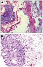 cervical squamous cell carcinoma with isolated tibial metastasis