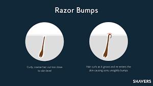 electric shaver ingrown hair prevent ingrown hairs and razor bumps shaving tips for black men